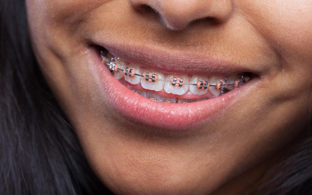 Orthodontie bagues classiques